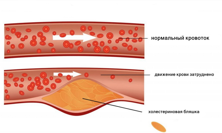 Холестериновая бляшка, холестерин