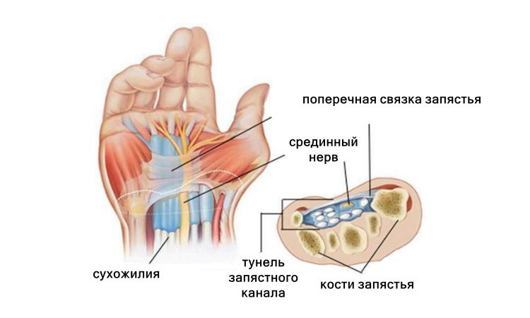 Синдром запястного канала, тунельный синдром