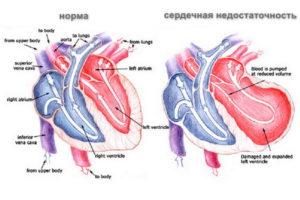 Сердечная нгедостаточность