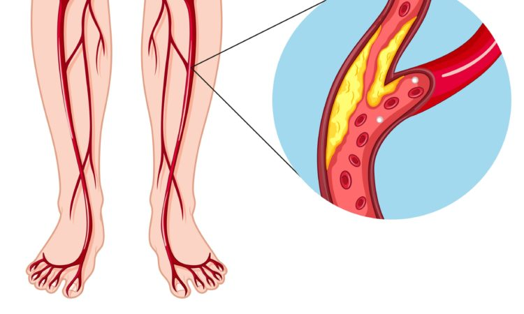 заболевание периферических артерий (PAD)