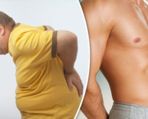 лишний вес и дегенерация дисков позвоночника