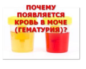почему появляется кровь в моче (гематурия)?