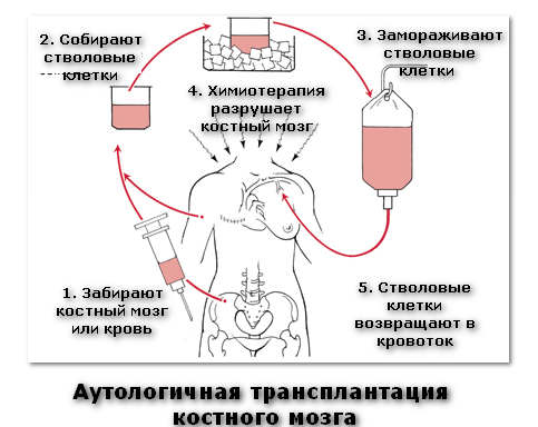 аутологичная трансплантация костного мозга