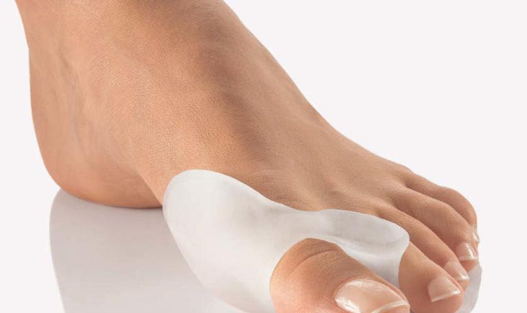 бурсит большого пальца ноги