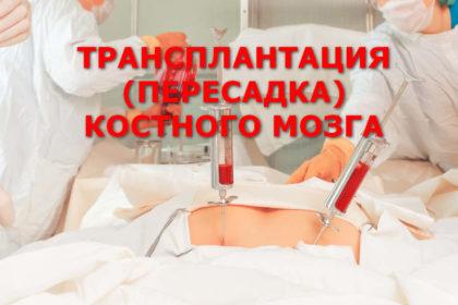 ТРАНСПЛАНТАЦИЯ ПЕРЕСАДКА КОСТНОГО МОЗГА