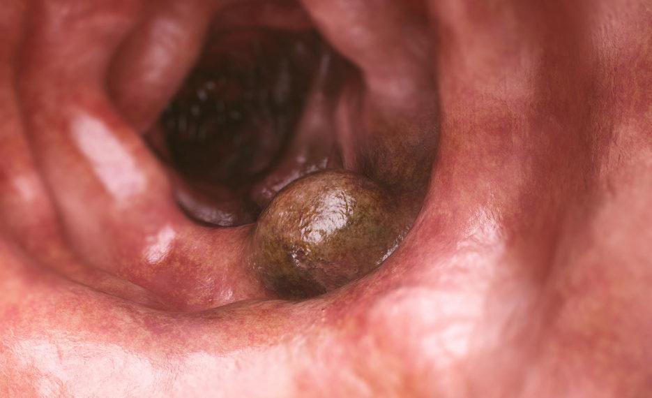 Раковый полип в кишечнике