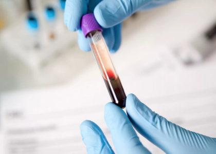 анализ иммуноглобулин Е