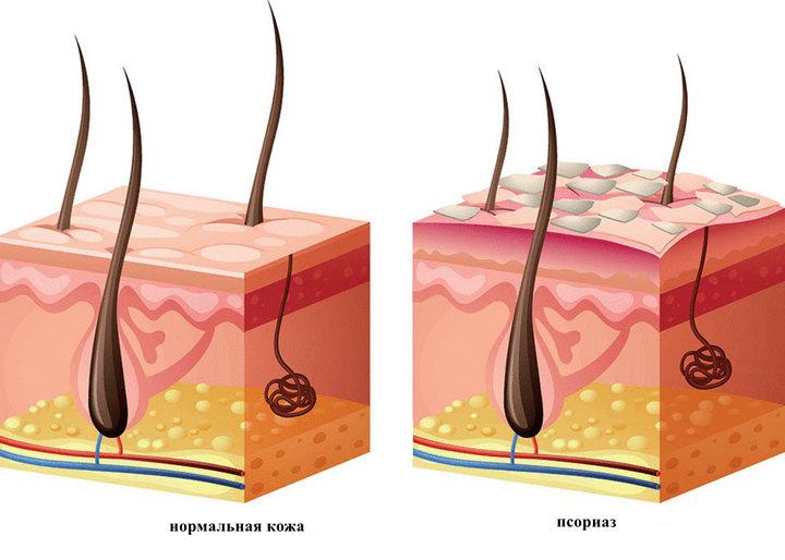 Псориаз кожа