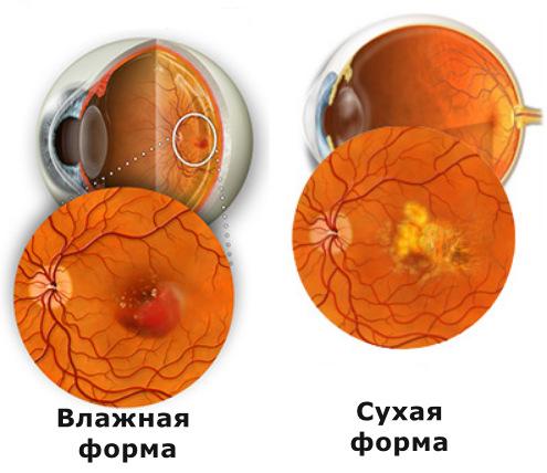 Дегенерация желтого пятна, макулодистрофия