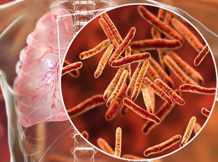 бактерия туберкулеза